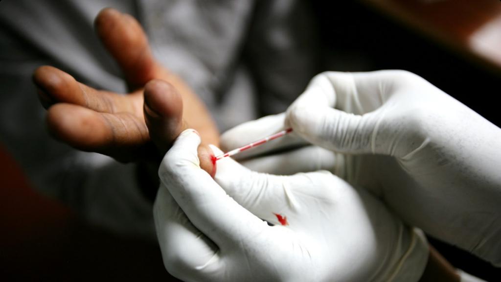 hiv-tests